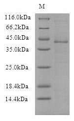 SDS-PAGE- Recombinant protein Vaccinia VACWR090