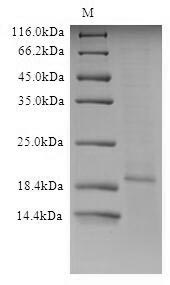 SDS-PAGE- Recombinant protein Influenza M2