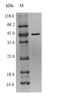 SDS-PAGE- Recombinant protein Anaplasma rplV