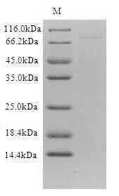 SDS-PAGE- Recombinant protein Human DCP1B