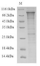 SDS-PAGE- Recombinant protein Human RFWD2
