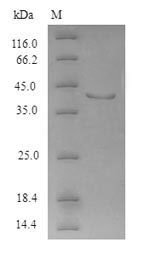 SDS-PAGE- Recombinant protein Human APH1a