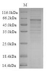 SDS-PAGE- Recombinant protein Human WNT2B