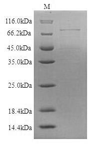SDS-PAGE- Recombinant protein Human DSG1