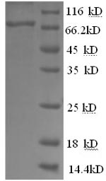 SDS-PAGE- Recombinant protein Mouse Afp