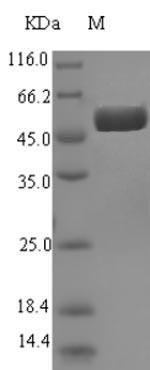 SDS-PAGE- Recombinant protein Escherichia speB