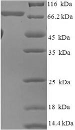SDS-PAGE- Recombinant protein Human AKT2