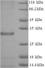 SDS-PAGE- Recombinant protein Mouse Birc5