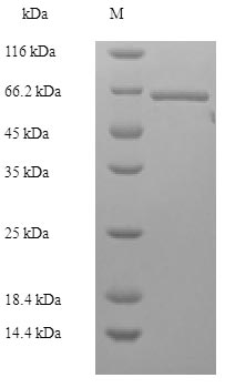 SDS-PAGE- Recombinant protein Human BRCC3