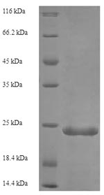 SDS-PAGE- Recombinant protein Human C5