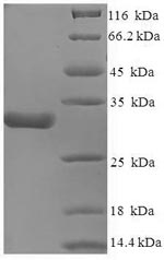SDS-PAGE- Recombinant protein Human CACNA2D1