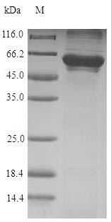 SDS-PAGE- Recombinant protein Human CCT6A
