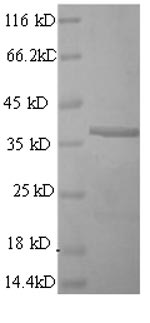 SDS-PAGE- Recombinant protein Mouse Cd63