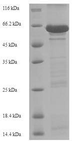 SDS-PAGE- Recombinant protein Human CDH1