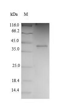 SDS-PAGE- Recombinant protein Human CDK2