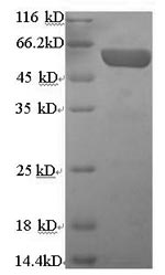 SDS-PAGE- Recombinant protein Human CHGA