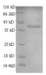 SDS-PAGE- Recombinant protein Torpedo CHRNA1