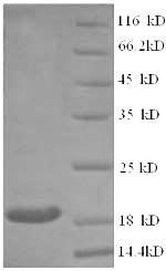 SDS-PAGE- Recombinant protein Human CLTCL1