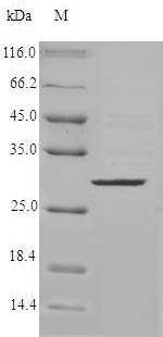 SDS-PAGE- Recombinant protein Human CMA1