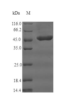 SDS-PAGE- Recombinant protein Human CR1