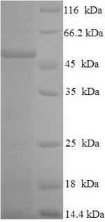 SDS-PAGE- Recombinant protein Human CSF2RA