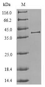 SDS-PAGE- Recombinant protein Chlorocebus CTSL1