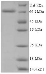 SDS-PAGE- Recombinant protein Human CYP11A1