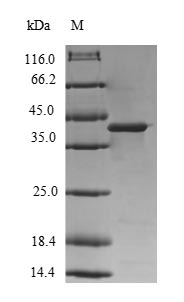 SDS-PAGE- Recombinant protein Human DGKG