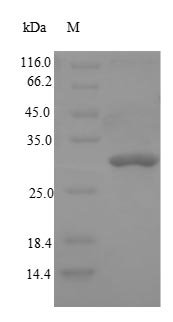 SDS-PAGE- Recombinant protein Rat Dpp4