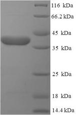 SDS-PAGE- Recombinant protein Human EBAG9