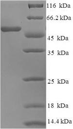 SDS-PAGE- Recombinant protein Human ELANE