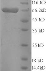 SDS-PAGE- Recombinant protein Pig ETFDH