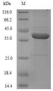 SDS-PAGE- Recombinant protein Human F11