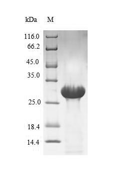 SDS-PAGE- Recombinant protein Human F7
