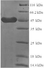 SDS-PAGE- Recombinant protein Human FCER2