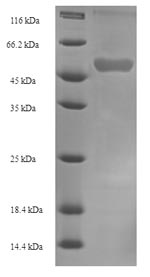 SDS-PAGE- Recombinant protein Human FDXR