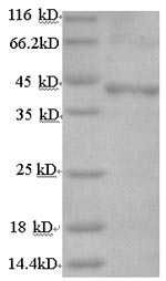 SDS-PAGE- Recombinant protein Human FSHR