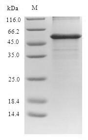SDS-PAGE- Recombinant protein Human GPT