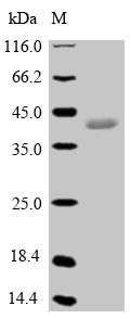 SDS-PAGE- Recombinant protein Pig GPX5