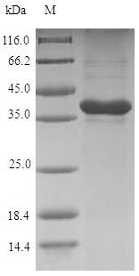 SDS-PAGE- Recombinant protein Rat Grem1