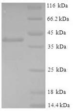 SDS-PAGE- Recombinant protein Mouse Gstp1
