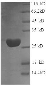 SDS-PAGE- Recombinant protein Rat Gstp1