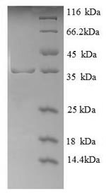SDS-PAGE- Recombinant protein Human GYPA