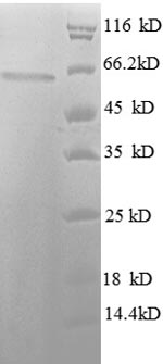 SDS-PAGE- Recombinant protein Human HDAC3