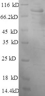 SDS-PAGE- Recombinant protein Human HK1