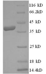 SDS-PAGE- Recombinant protein Human HMGCR