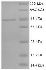 SDS-PAGE- Recombinant protein Human HSD11B1