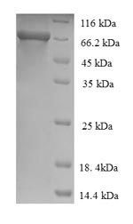 SDS-PAGE- Recombinant protein Human IDUA
