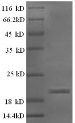 SDS-PAGE- Recombinant protein Sheep IFNG