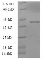 SDS-PAGE- Recombinant protein Sus IL33